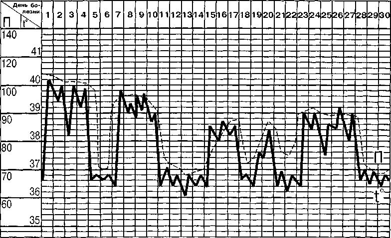 Клещевой (эндемический) возвратный тиф, течение средней тяжести
